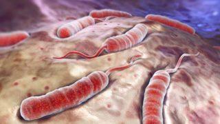 Cholera epidemic