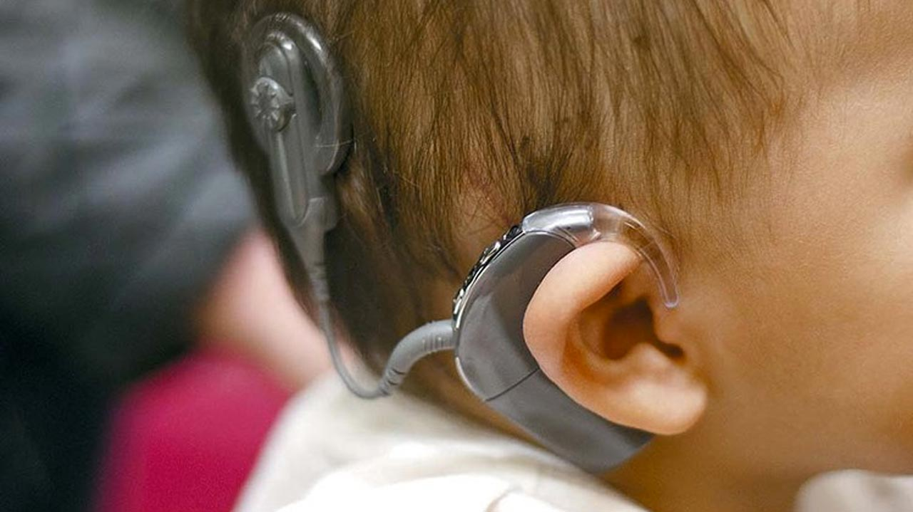 the benefits of cochlear implants for language development in the hearing impaired Cochlear implants have been available in the us since 1984, but only a very small minority of the deaf and hearing impaired has them the food and drug administration estimates that 250,000 americans (out of 48 million with hearing loss) could benefit from a cochlear implant.