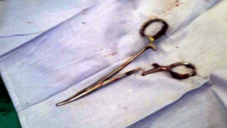 A pair of scissors which was removed from a patient's abdomen after being left behind during a surgery 18 years ago, at a clinic in the northern Vietnamese city of Thai Nguyen (AFP Photo/VIETNAM NEWS AGENCY)